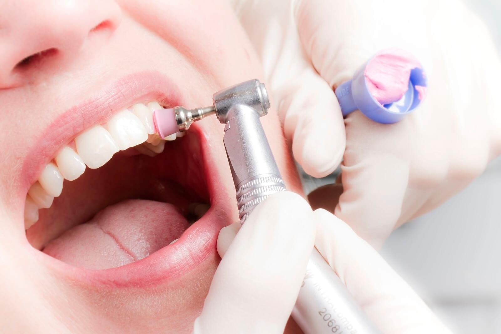 Цена на профессиональную гигиену полости рта