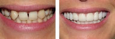 Эстетическая реставрация зубов в Минске
