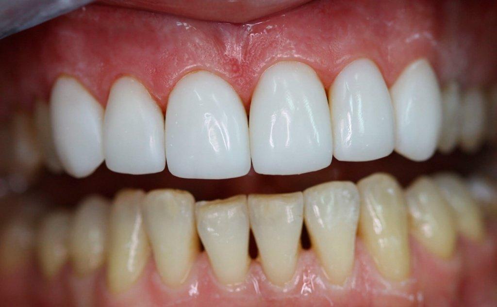 Цена на установку виниров на зубы