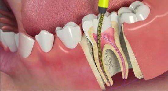Лечение каналов зуба в Минске
