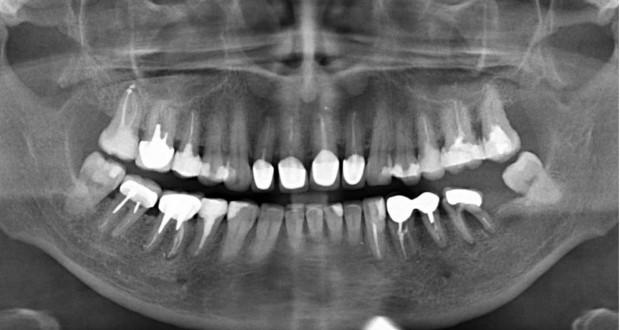 Сделать прицельный снимок зуба