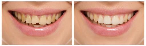 Цены на эстетическую реставрацию зубов
