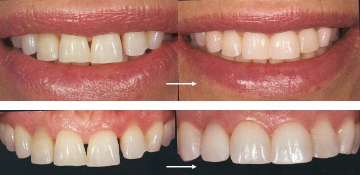 Стоимость установки виниров на зубы